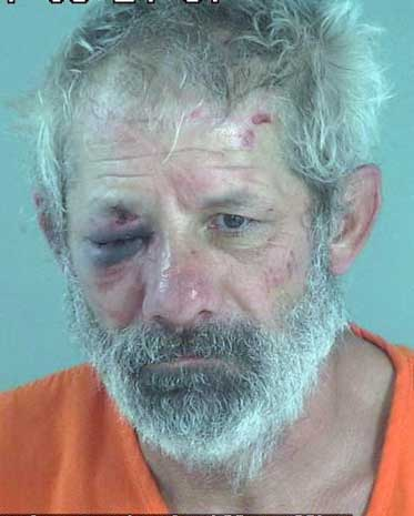 County man claims deputy assaulted him | GilaValleyCentral Net